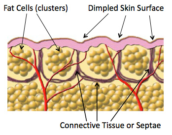 Subcutaneous fat tissue
