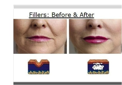 fillers-before-after