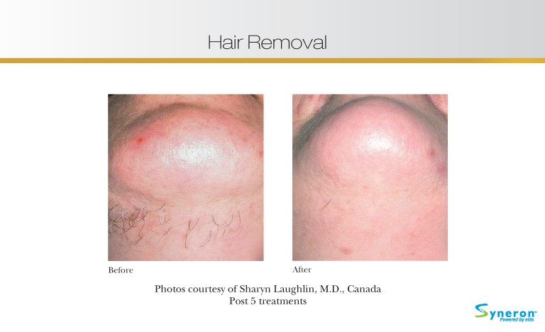 hair-removal-1