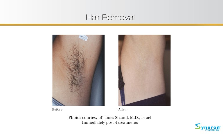 hair-removal-4