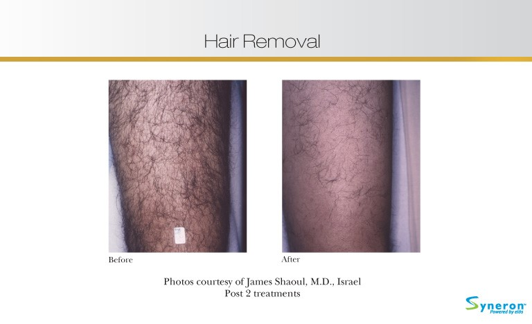 hair-removal-6