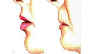 lip-ageing