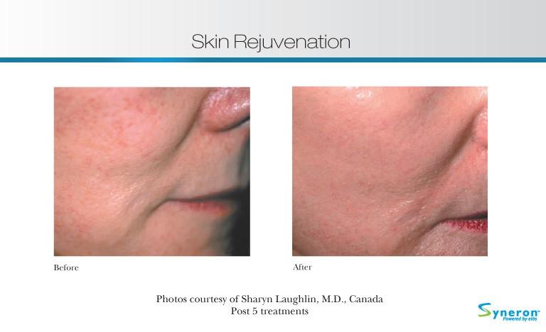 skin-rejuvenation-1