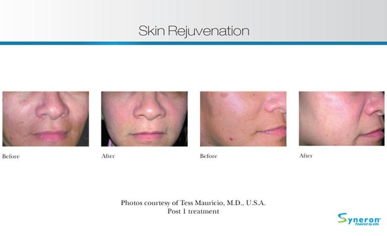 skin-rejuvenation-5