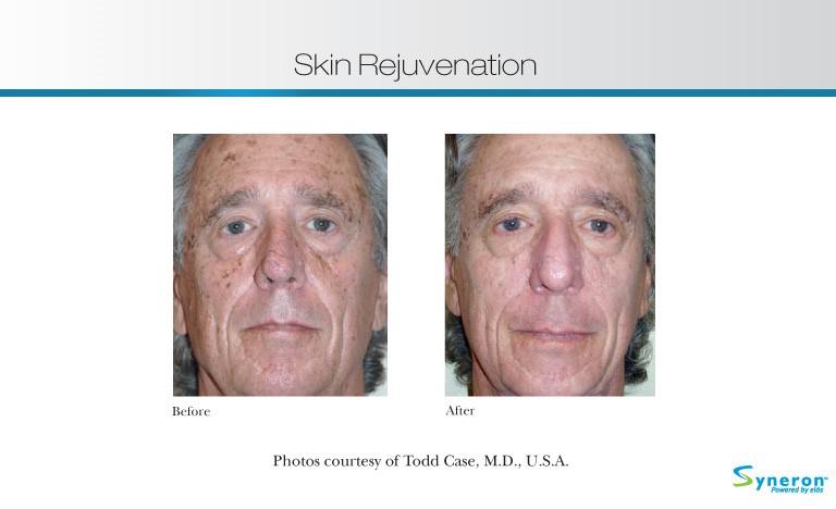 skin-rejuvenation-6