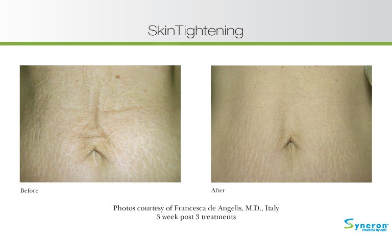 skin-tightening-3