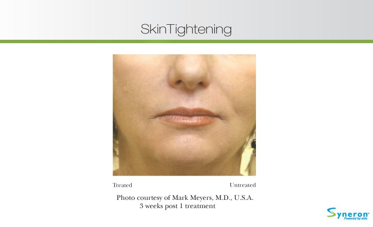best non invasive anti aging treatments
