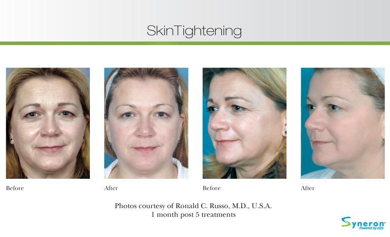 skin-tightening-5