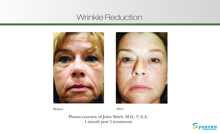 wrinkle-reduction-3