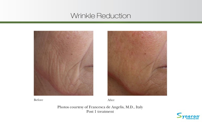 wrinkle-reduction-4