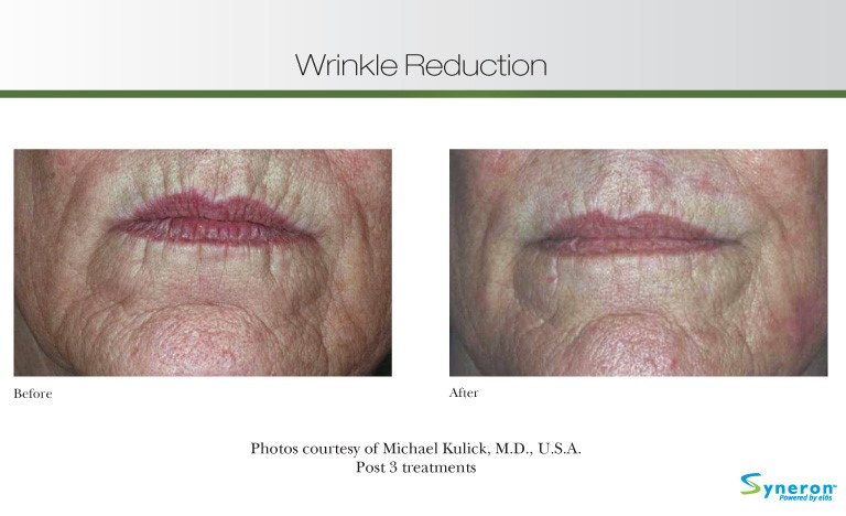wrinkle-reduction
