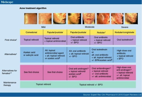 acne-from-tony-acne-treatment-algorithm