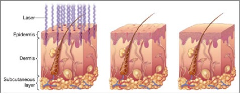 acne-from-tony-biological-pic-of-skin
