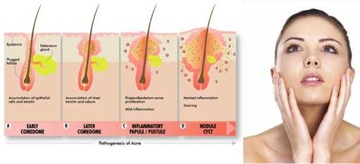 acne-from-tony-hair-follicles