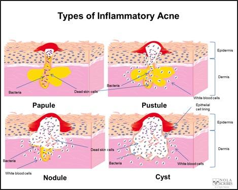 acne-from-tony-inflammatory-acne