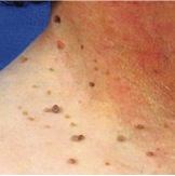 skin-irregularities-from-tony-fibromas