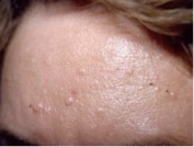 skin-irregularities-from-tony-sebaceous-hyperplasia