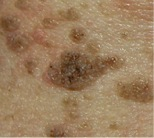 skin-irregularities-from-tony-seborrhoeic-keratosis