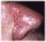 skin-irregularities-from-tony-telangiectasia